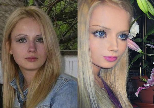 la barbie umana prima e dopo