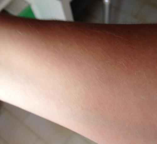 il mio braccio senza olio